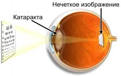 http://luchik.43-ozr.edusite.ru/p9aa1/DswMedia/06.jpg